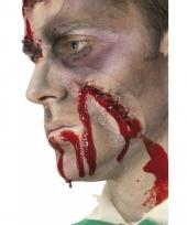 Groot litteken met bloed en hechtingen